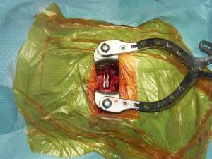Konečný pohled do operačního pole, kdy je odstraněna ploténka, uvolněna mícha a nervové kořeny a zaveden implantát (zde pohyblivá ploténková protéza).